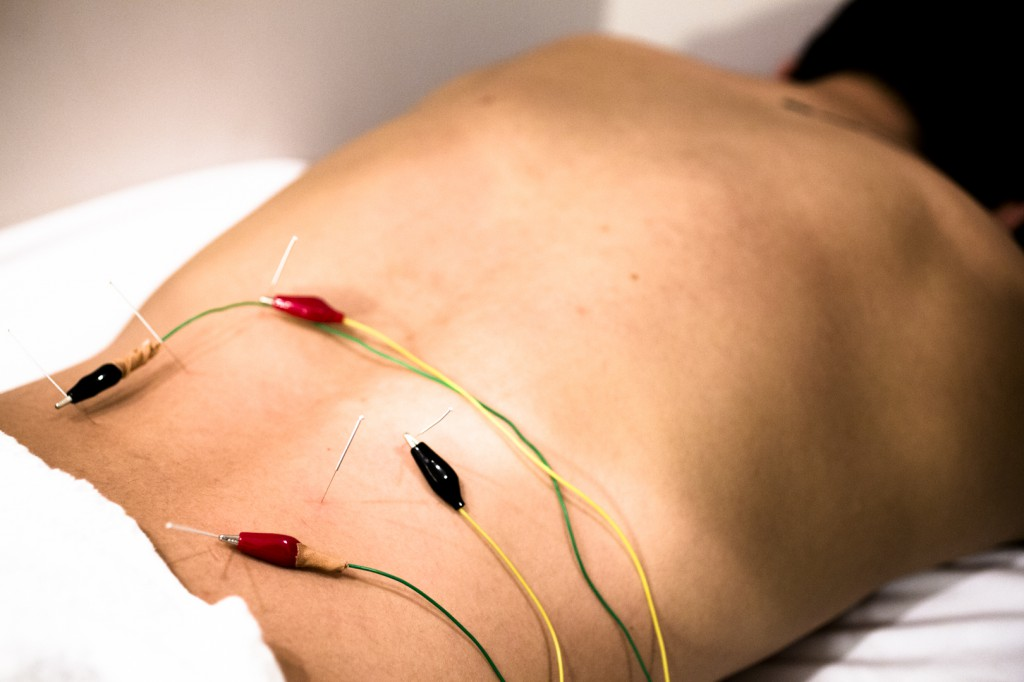 acupuncture in markham